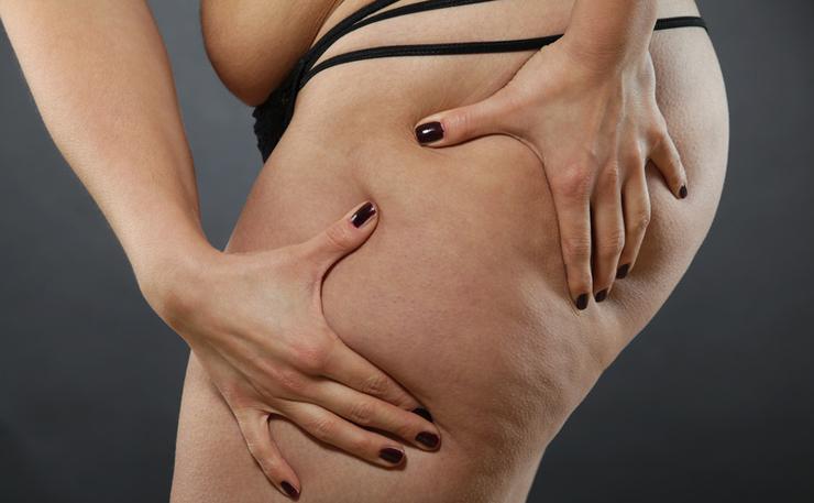 Mit Fettabsaugen lassen sich Problemzonen bekämpfen. (Bild: @ Jessmine - Fotolia.com)