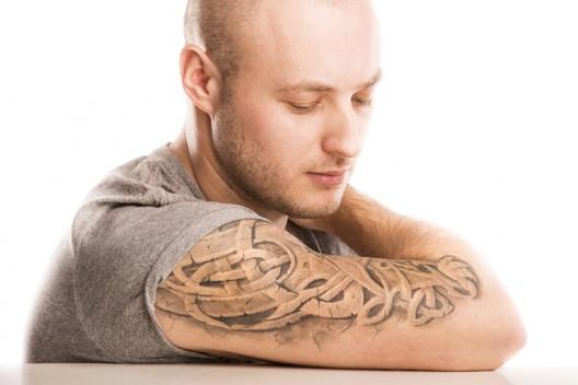 Tattoo entfernen lassen: Neue Methoden machen es möglich!
